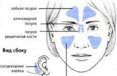 Гемисинусит: симптоми і лікування гнійного і гострого гемисинусита