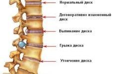 Симптоми і лікування головного болю при шийному остеохондрозі.