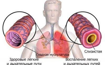 Чи можна померти від пневмонії – які ризики, як уникнути
