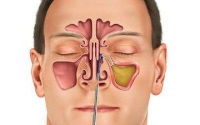 Гнійний гайморит: причини, симптоми, лікування, ускладнення та профілактика