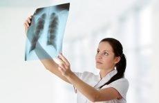 Бронхіт і пневмонія: як відрізнити симптоми захворювань?