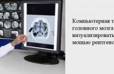 Комп'ютерна томографія головного мозку