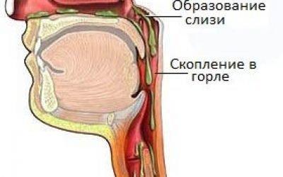 Слиз в горлі – причини і лікування