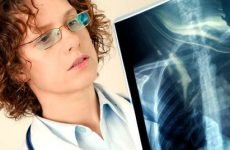 Безсимптомна пневмонія (прихована форма): як виявити запалення легенів