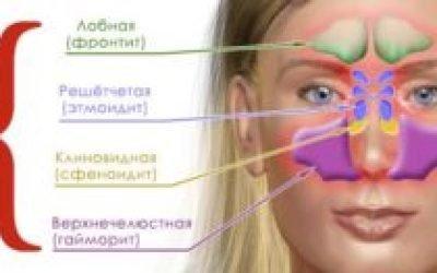 Головний біль – обов'язковий супутник синуситу.