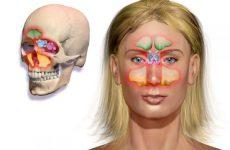 Двосторонній синусит: причини, симптоми, лікування, ускладнення
