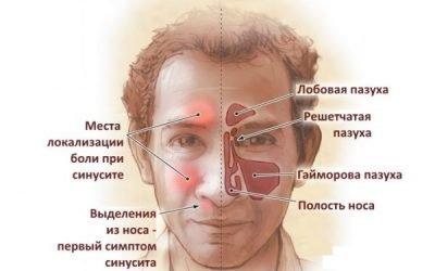 Катаральний синусит: симптоми і лікування у дорослих і дітей