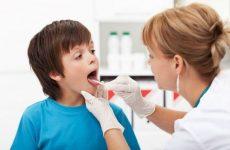 Ангіна у дітей 4, 5 і 6 років: перші симптоми, лікування, ускладнення