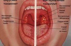 Лакунарна ангіна: причини, симптоми, лікування, ускладнення
