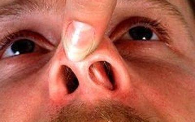 Грибок в носі – ознаки, ніж лікувати слизову носа