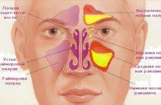 Гнійний синусит: причини, симптоми, лікування, ускладнення