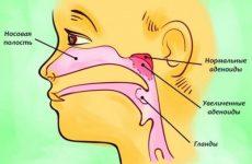 Симптоми і способи лікування аденоїдів у дорослих людей