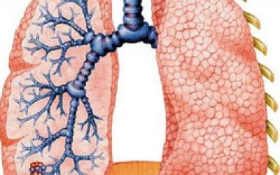 Бронхопневмонія у дорослих: форми, причини, симптоми, діагностика, лікування
