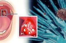 Фолікулярна ангіна: симптоми, лікування, ускладнення