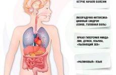 Бульбашки на стінках горла – як лікувати, причини появи