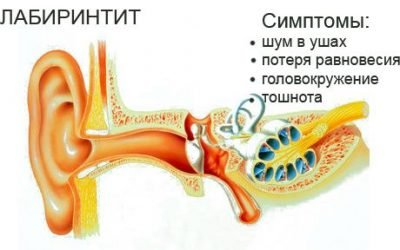 Лабіринтит або внутрішній отит: причини,симптоми, лікування
