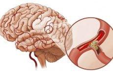 Діагностика, симптоми і лікування атеросклерозу судин головного мозку