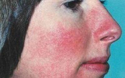 Почервоніння носа – що це, причини і лікування