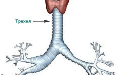 Хронічний трахеїт у дорослих – причини, симптоми і лікування