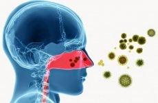 Бактеріальний синусит у дорослих і дітей: симптоми, лікування, ускладнення
