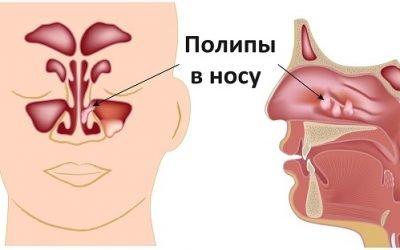 Поліпи в носі – лікування без операції, симптоми та причини