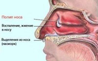Лікування поліпів операцією – види проведення оперативного втручання