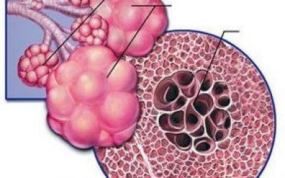 Деструктивна пневмонія: що це, симптоми і лікування