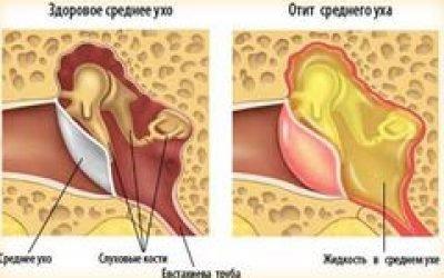 Заклало вуха при застуді – причини, що робити, як лікувати