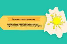 Жовті соплі у дорослого – причини, лікування, народні засоби
