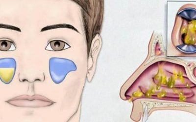 Гнійний риносинусит: причини, симптоми, лікування, ускладнення