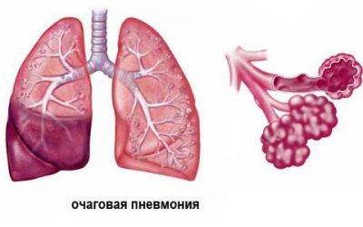 Вогнищева пневмонія: особливості, види, симптоми і лікування