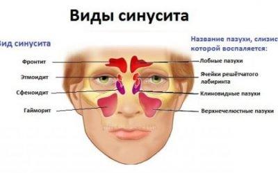 Класифікація синуситів: види, форми, типи синуситів