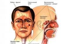Двосторонній синусит і його гостра форма: симптоми, причини і лікування