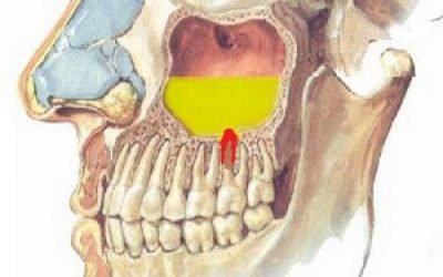 Одонтогенний верхньощелепної синусит: симптоми і лікування хвороби