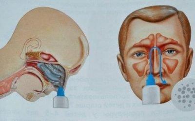 Пристрої для промивання носа – популярні прилади та апарати для будинку