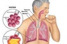 Препарати, що розріджують мокротиння і поліпшують її відходження