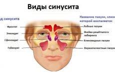 11 методів швидкого лікування синуситу в домашніх умовах у дорослих