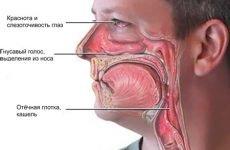 11 симптомів риносинуситу звичайного і хронічного, лікування у дорослих
