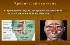 12 симптомів хронічного синуситу у дорослих, правила і методи лікування