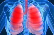 14 ознак і проявів пневмонії – як визначити і чим лікувати?