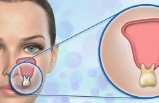 14 симптомів одонтогенного гаймориту – способи лікування у т. ч. народними