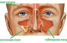 16 ознак та симптомів лівостороннього гаймориту, лікування та діагностика