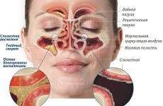 20 симптомів різних видів гаймориту – принципи лікування