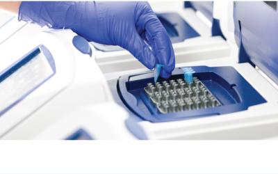 2 нестачі ПЛР на туберкульоз: аналіз крові для діагностики