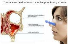 38 ознак і симптомів гаймориту різної форми і видів у дорослих і дітей