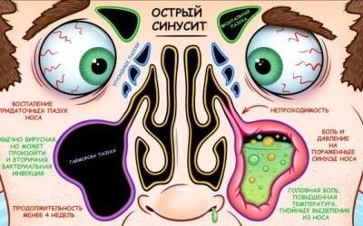 3 симптому бактеріального (вірусного) синуситу – особливості перебігу у дітей