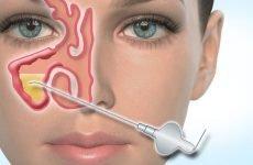 4 показання для проколу носа при гаймориті – як його роблять і боляче це?