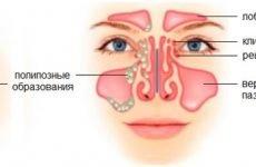 4 причини полипозного синуситу, методи лікування і список наслідків