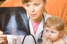 5 причин пневмонії (запалення легенів) у дитини – як розпізнати?