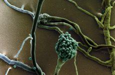 5 видів пневмомикоза: звичайні і народні засоби лікування